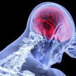 Může být epileptický záchvat pracovním úrazem?